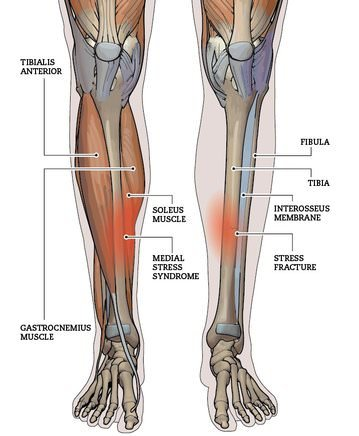 anatomy of shin splints-image