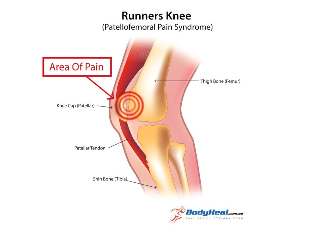 runners-knee-image-3